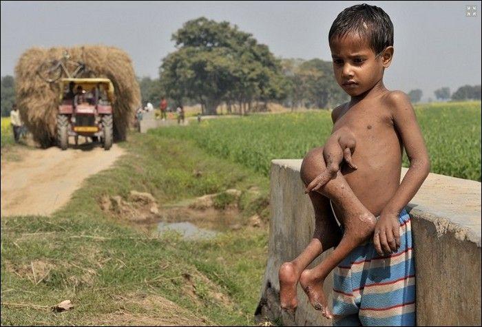 Garoto indiano com gêmeo parasita faz cirurgia