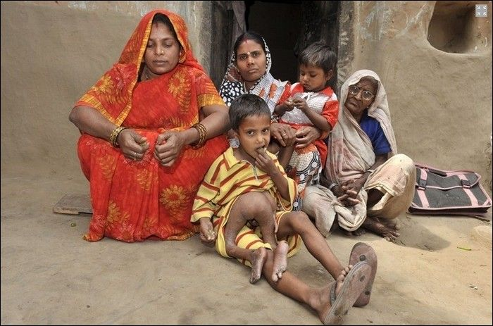 Garoto indiano com gêmeo parasita faz cirurgia 04