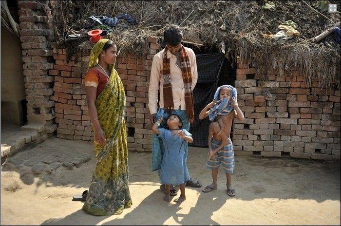 Garoto indiano com gêmeo parasita faz cirurgia 06