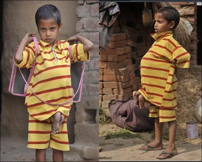 Garoto indiano com gêmeo parasita faz cirurgia 07