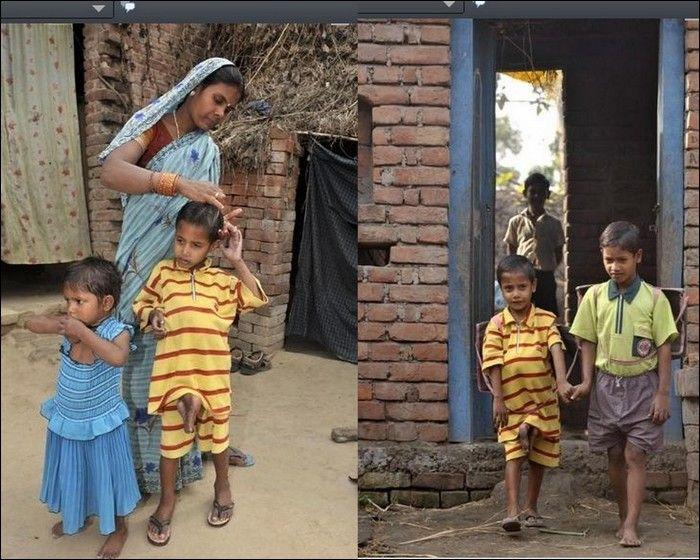 Garoto indiano com gêmeo parasita faz cirurgia 08