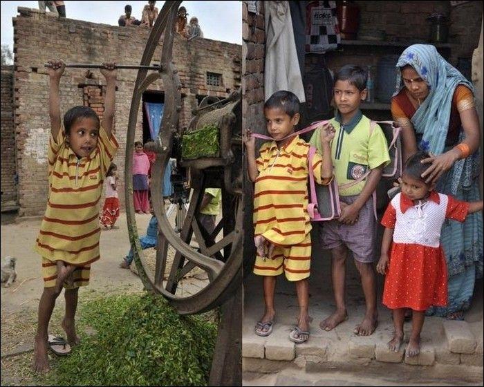 Garoto indiano com gêmeo parasita faz cirurgia 09