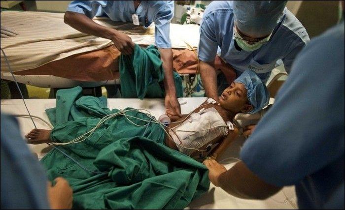 Garoto indiano com gêmeo parasita faz cirurgia 10