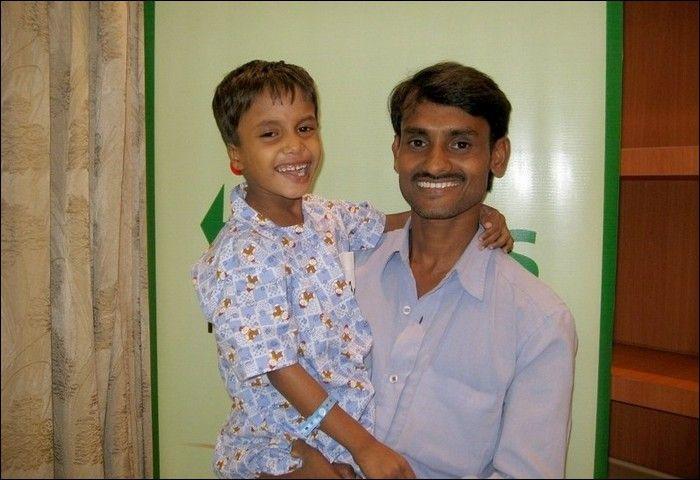 Garoto indiano com gêmeo parasita faz cirurgia 12
