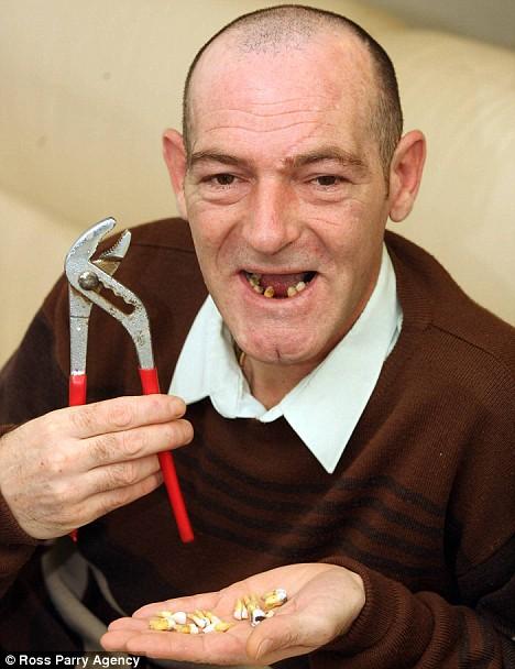 Homem arranca 13 dentes da própria boca