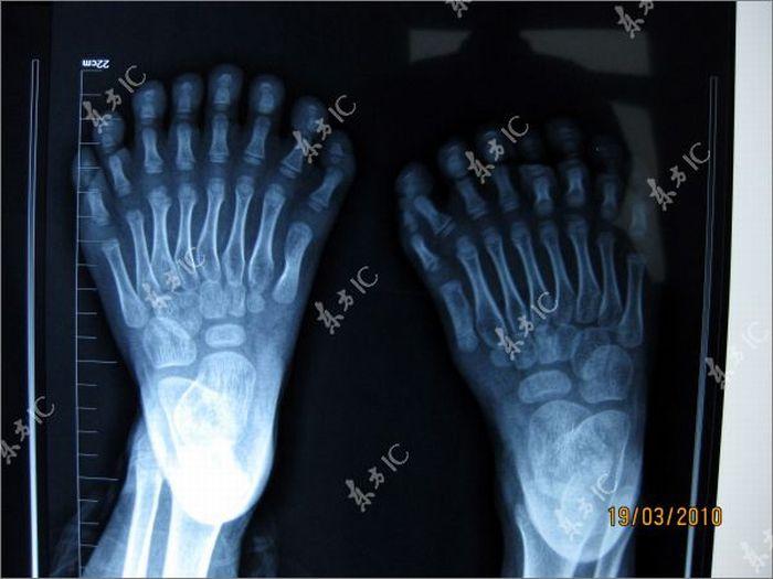 Garoto com 34 dedos