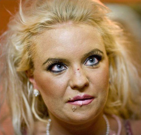 Johanna Tukiainen, desastre da cirurgia plástica