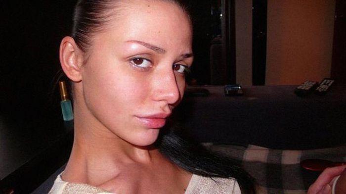 Maria beiçuda, outro desastre da cirurgia plástica 02