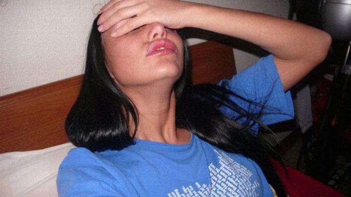 Maria beiçuda, outro desastre da cirurgia plástica 05