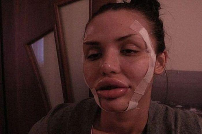 Maria beiçuda, outro desastre da cirurgia plástica 06
