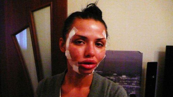 Maria beiçuda, outro desastre da cirurgia plástica 07