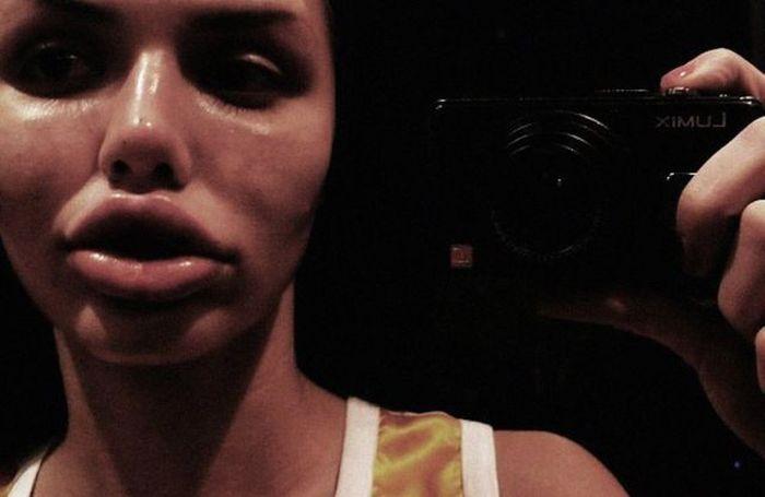 Maria beiçuda, outro desastre da cirurgia plástica 08