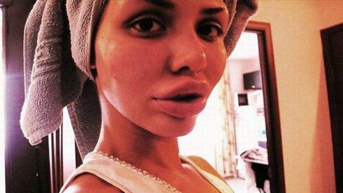 Maria beiçuda, outro desastre da cirurgia plástica 09