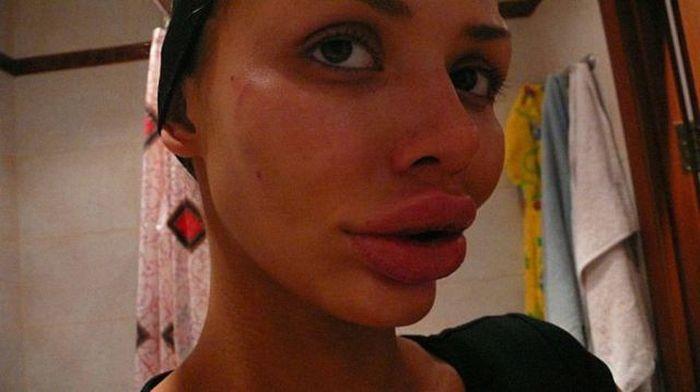 Maria beiçuda, outro desastre da cirurgia plástica 10