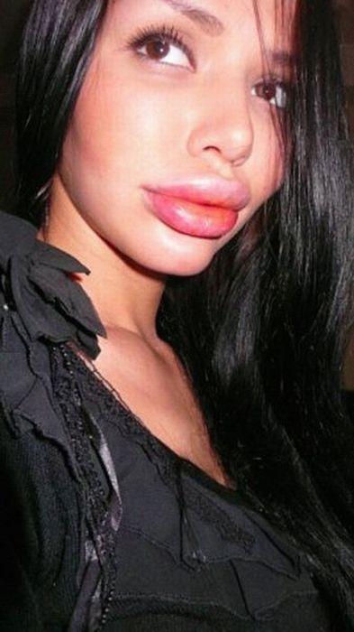 Maria beiçuda, outro desastre da cirurgia plástica 11