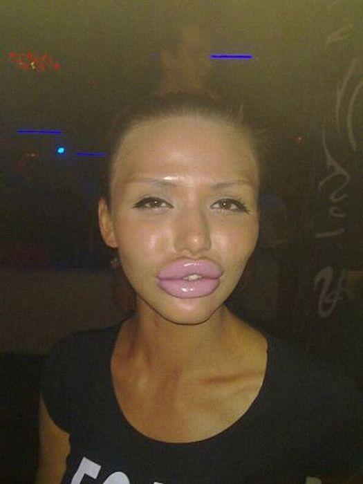 Maria beiçuda, outro desastre da cirurgia plástica 13