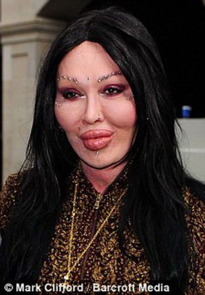 Pete Burns, o rei do silicone