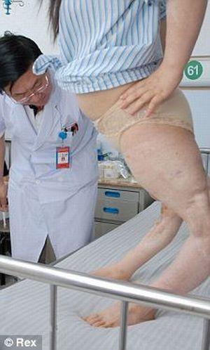 Chinesa de pernas tortas