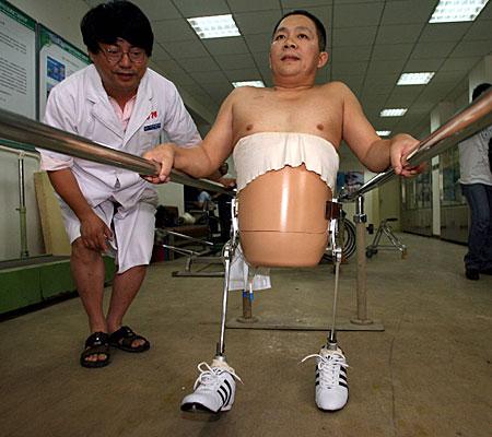 Peng Shulin, o homem cortado ao meio