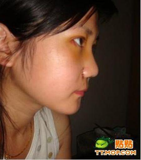 Cirurgia de ocidentalização dos olhos vira mania na China