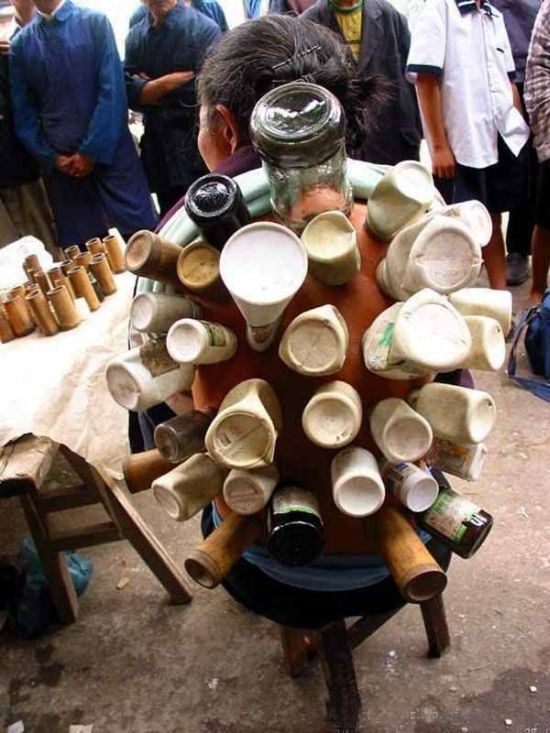Medicina tradicional de rua na China