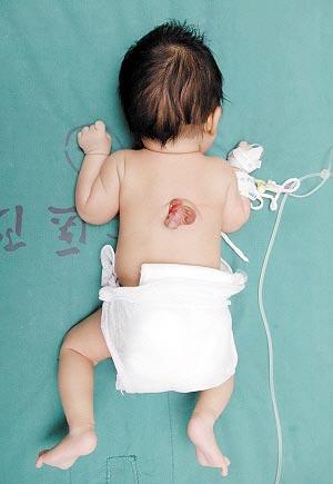Nasce bebê com um segundo pênis nas costas na China