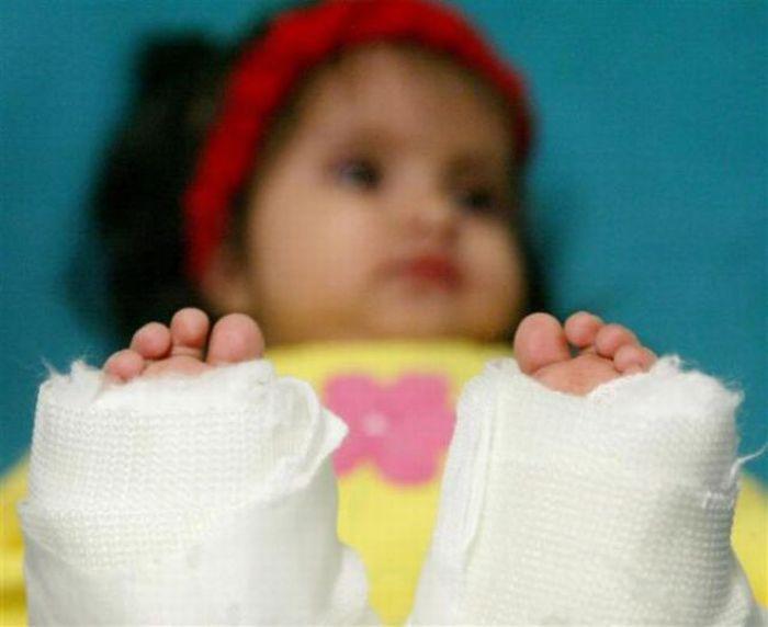 Milagros, a pequena sereia