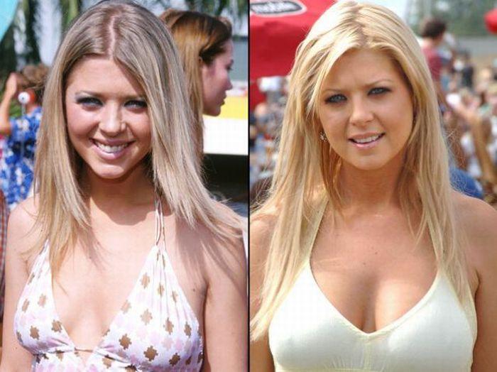 Celebridades antes e depois da cirurgia pl�stica