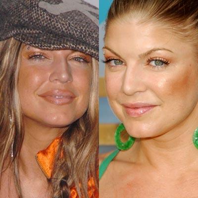 Antes e depois de famosas com silicone nos lábios