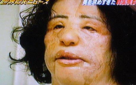 Coreana deforma o rosto por injetar azeite de cozinha na face