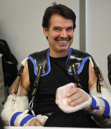 Primeiras fotos do homem que fez o transplante de dois braços
