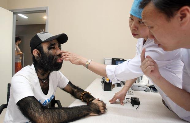 O chinês mais peludo do mundo vai fazer depilação