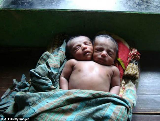 Nasce bebê com duas cabeças em Bangladesh