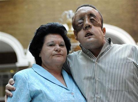 Transplante de rosto Rafael