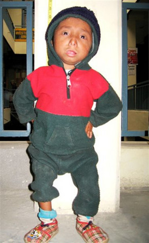 Nepalês busca recorde mundial do menor homem do mundo