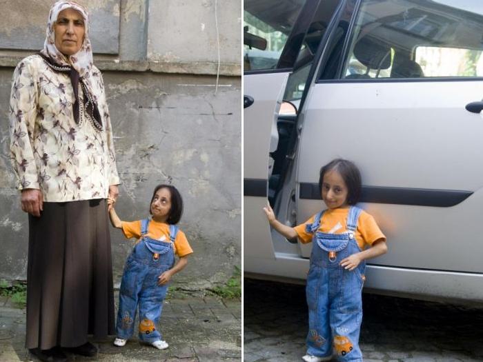 A menor mulher do mundo 01