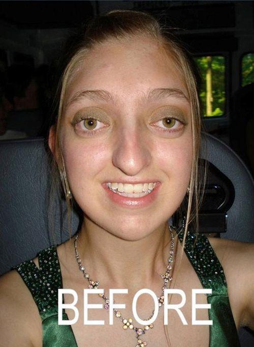 Cirurgia plástica bem sucedida