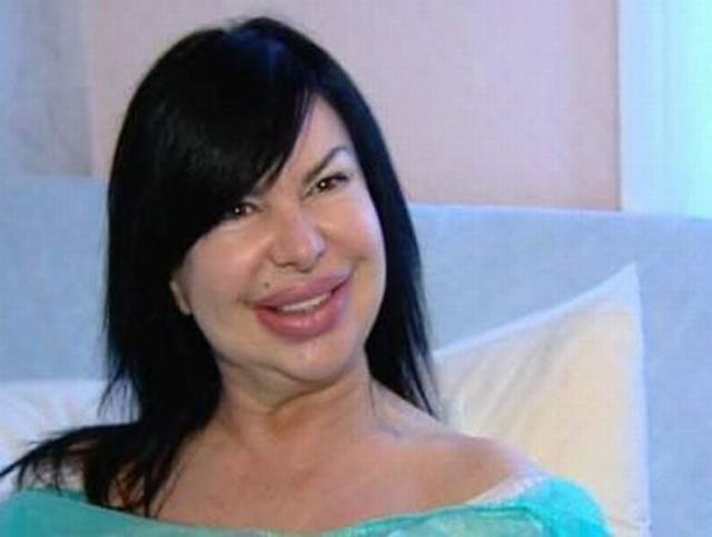 Desastre da cirurgia plástica