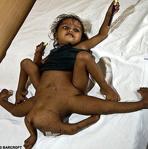 A menina que tinha 4 pernas e 4 braços operou