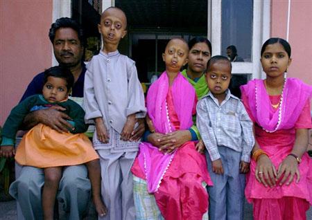 Uma familia com progeria