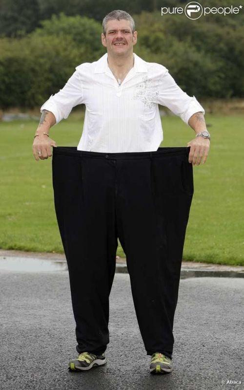 Homem que perdeu 160kg