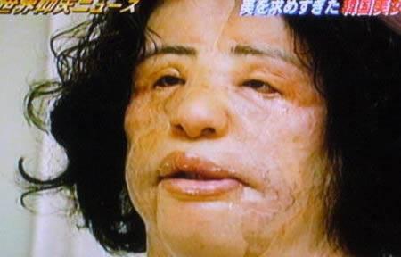 As dez piores cirurgias plásticas